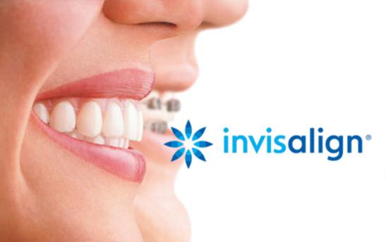 Apparecchi ortodontici Invisalign