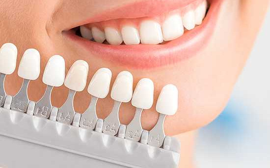 Estetica dentale ad Arese
